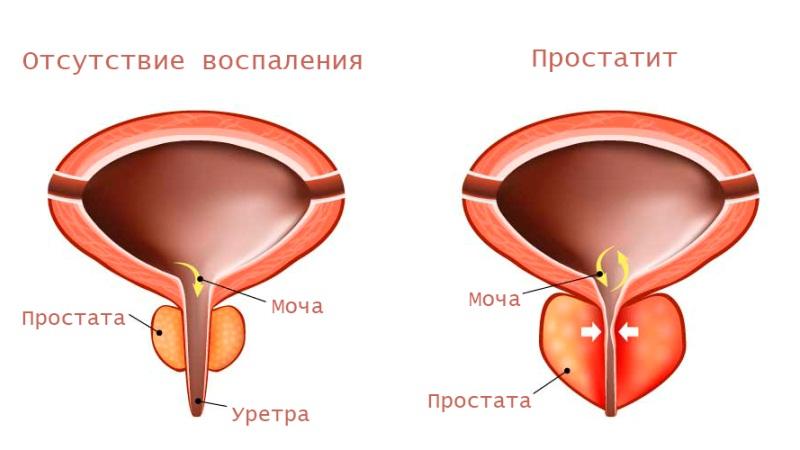 Prostata davolash